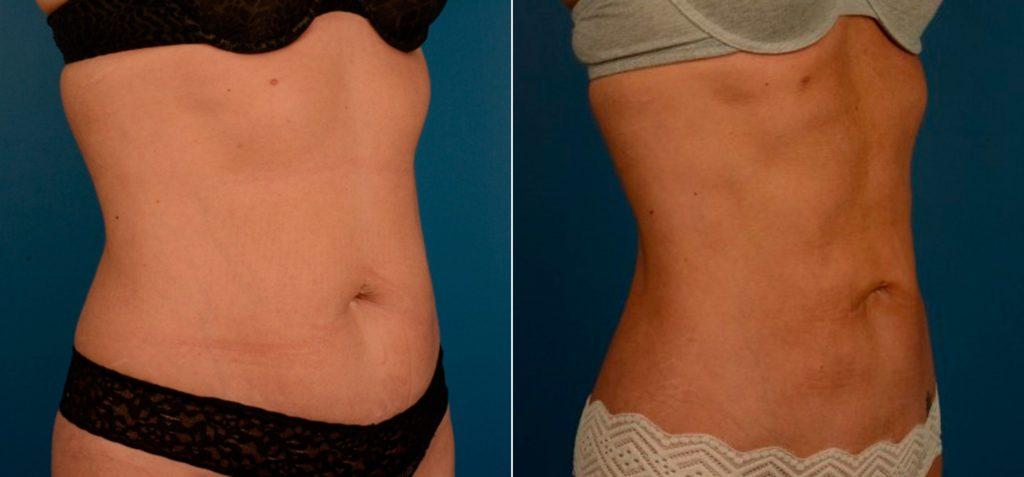 vaser-liposuction-before-after-15-scaled