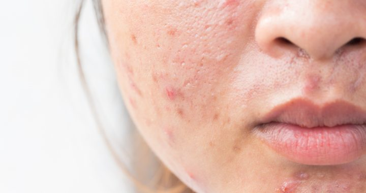 Girl with problematic skin and scars from acne (scar)